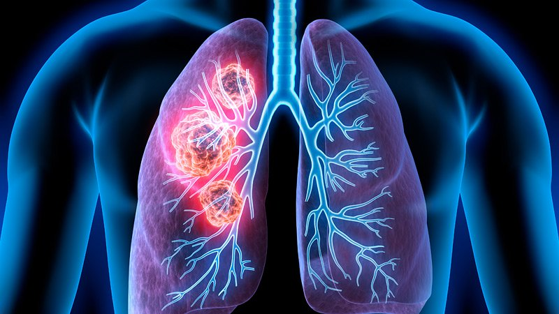 The Most Important Causes Of Lung Cancer
